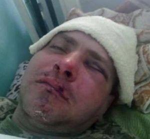 Под Одессой боевика В«Правого сектораВ» избили за участие в В«АТОВ» - «Происшедствия Крыма»